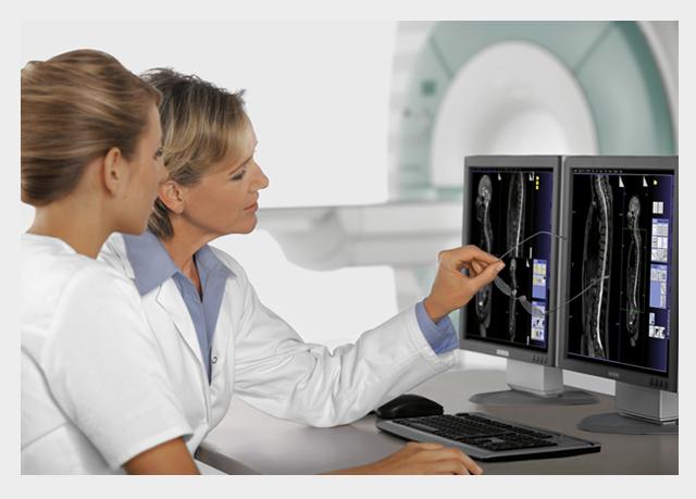 Dwie lekarki przed monitorem z widocznym wynikiem badania obrazowego